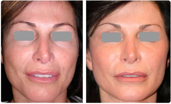 rejev-facial 1